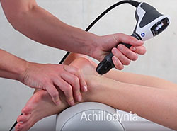 Achilles Heal Shockwave Therapy in Vancouver