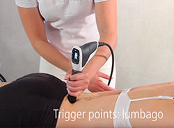 Shockwave Therapy on Trigger Points Lumbago