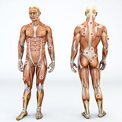 Acupoint Injection Therapy Trigger Points Chart